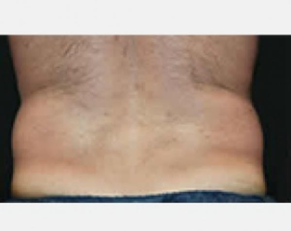 CoolSculpting Gallery - Patient 5883966 - Image 1