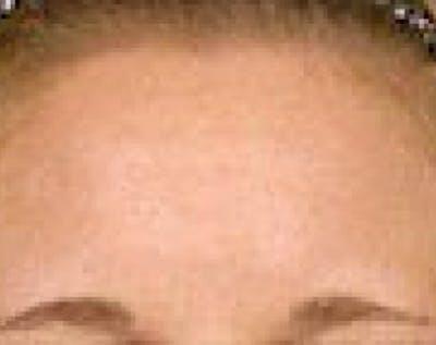 Fraxel Laser Gallery - Patient 5883965 - Image 2