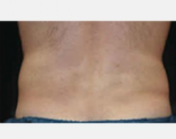 CoolSculpting Gallery - Patient 5883966 - Image 2