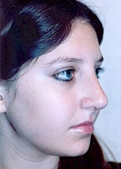 Rhinoplasty Gallery - Patient 5883967 - Image 4