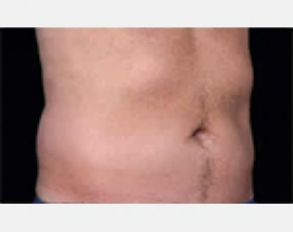CoolSculpting Gallery - Patient 5883970 - Image 1