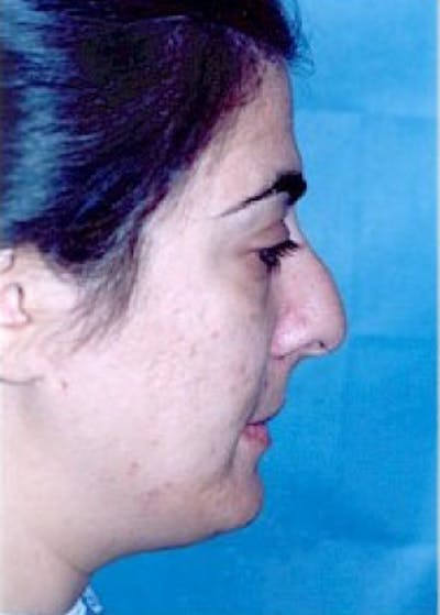 Rhinoplasty Gallery - Patient 5883975 - Image 1