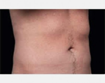 CoolSculpting Gallery - Patient 5883970 - Image 2