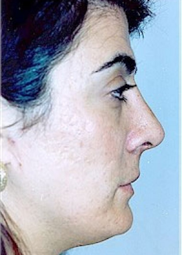 Rhinoplasty Gallery - Patient 5883975 - Image 2