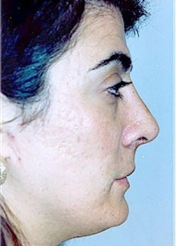 Rhinoplasty Gallery - Patient 5883975 - Image 2