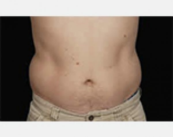 CoolSculpting Gallery - Patient 5883976 - Image 1