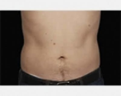 CoolSculpting Gallery - Patient 5883976 - Image 2