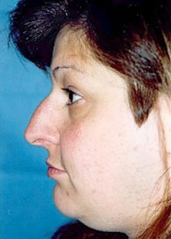 Rhinoplasty Gallery - Patient 5883978 - Image 1