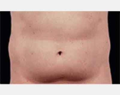 CoolSculpting Gallery - Patient 5883979 - Image 1