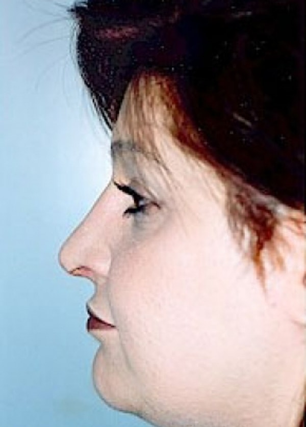 Rhinoplasty Gallery - Patient 5883978 - Image 2