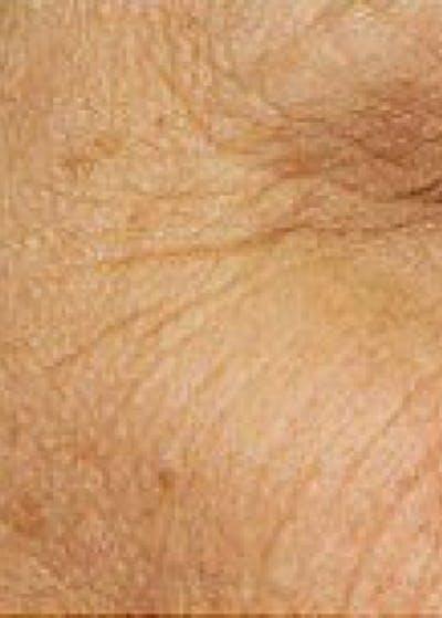 Fraxel Laser Gallery - Patient 5883980 - Image 1