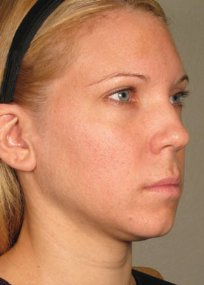 Ultherapy Gallery - Patient 5883983 - Image 1