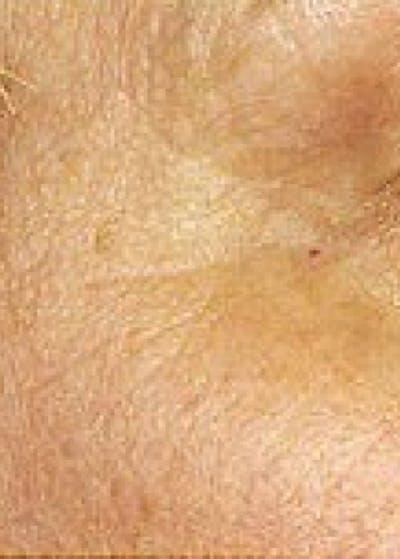 Fraxel Laser Gallery - Patient 5883980 - Image 2