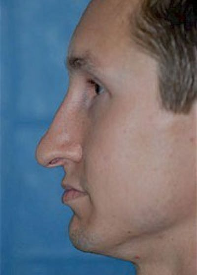 Rhinoplasty Gallery - Patient 5883981 - Image 1
