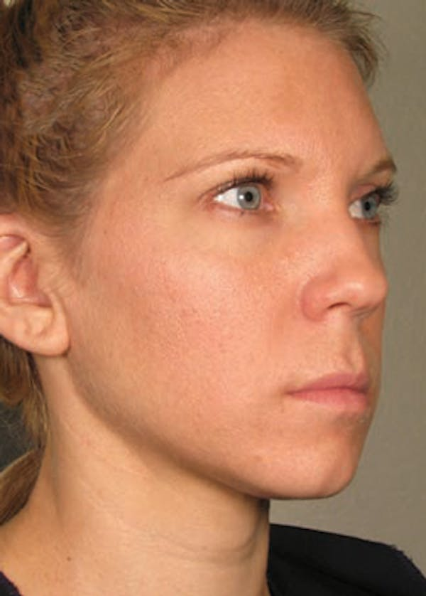 Ultherapy Gallery - Patient 5883983 - Image 2