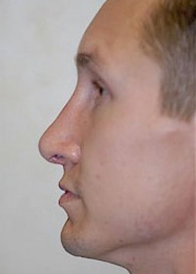 Rhinoplasty Gallery - Patient 5883981 - Image 2