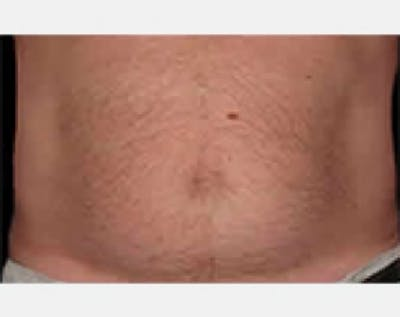 CoolSculpting Gallery - Patient 5883982 - Image 5