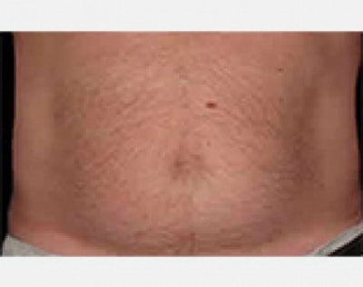 CoolSculpting Gallery - Patient 5883982 - Image 2