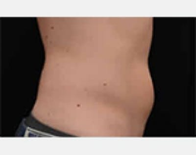 CoolSculpting Gallery - Patient 5883984 - Image 1