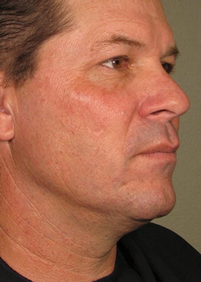 Ultherapy Gallery - Patient 5883986 - Image 2