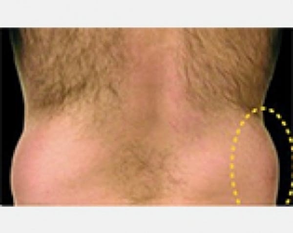CoolSculpting Gallery - Patient 5883989 - Image 1