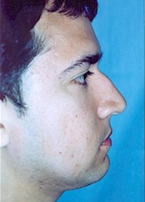 Rhinoplasty Gallery - Patient 5883990 - Image 3