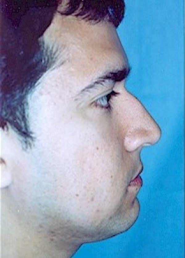 Rhinoplasty Gallery - Patient 5883990 - Image 3