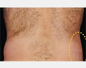 CoolSculpting Gallery - Patient 5883989 - Image 2