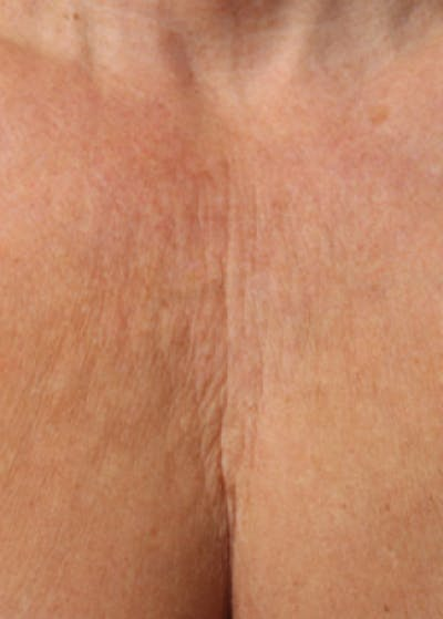 Ultherapy Gallery - Patient 5883993 - Image 1