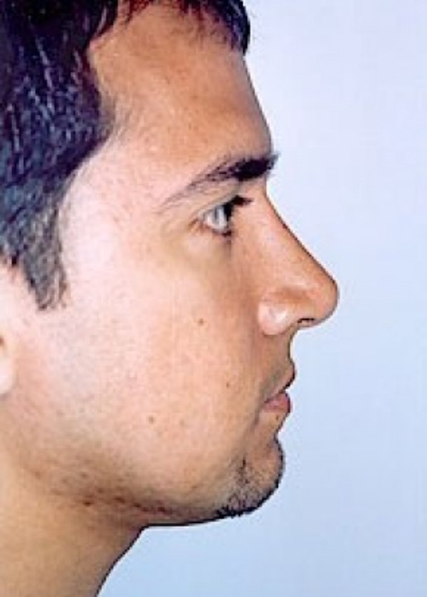 Rhinoplasty Gallery - Patient 5883990 - Image 4