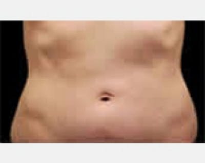 CoolSculpting Gallery - Patient 5883992 - Image 1