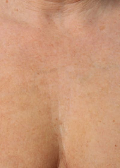 Ultherapy Gallery - Patient 5883993 - Image 3