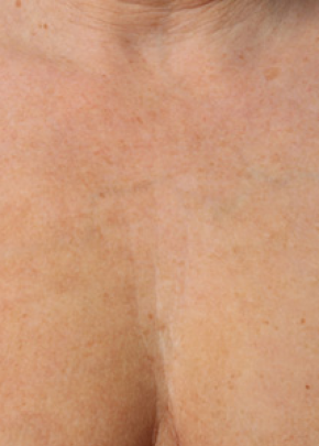 Ultherapy Gallery - Patient 5883993 - Image 2