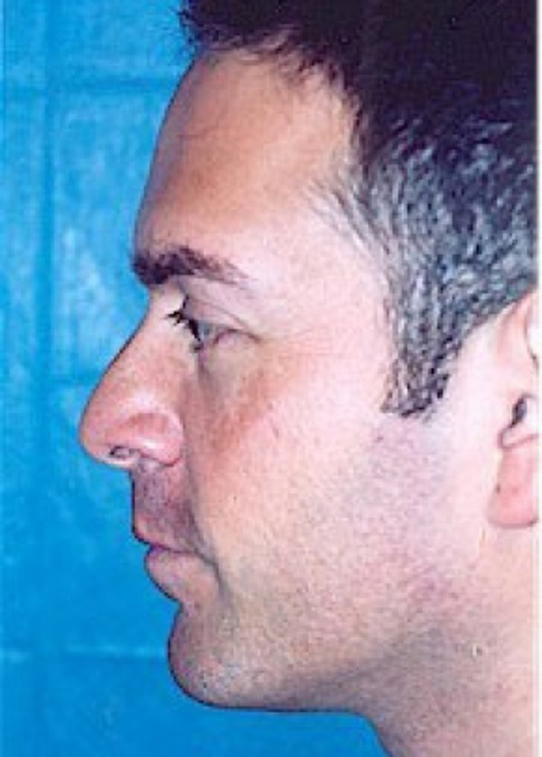Rhinoplasty Gallery - Patient 5883994 - Image 1