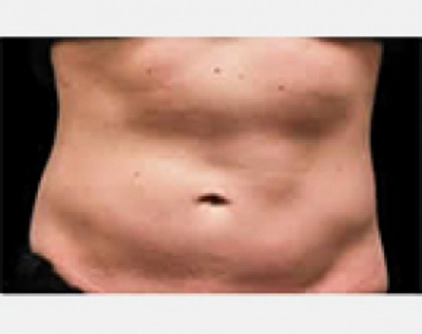 CoolSculpting Gallery - Patient 5883996 - Image 1