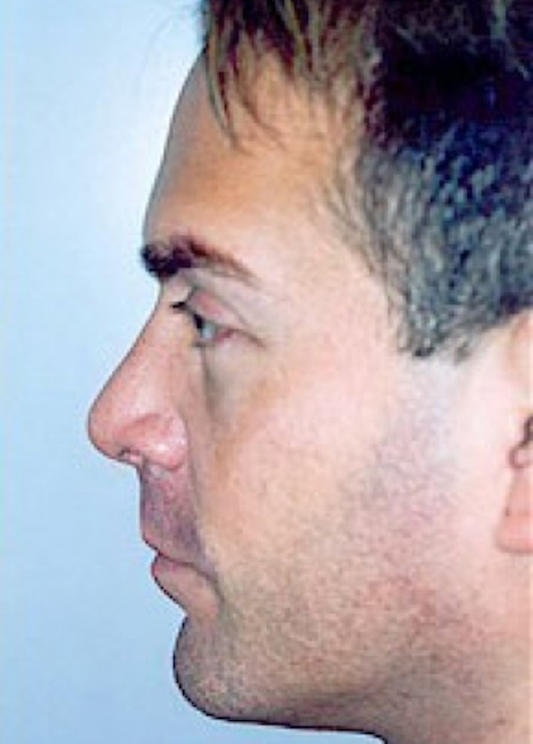 Rhinoplasty Gallery - Patient 5883994 - Image 2