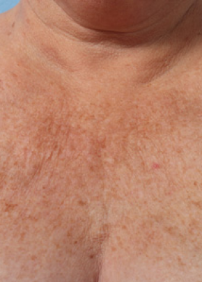 Ultherapy Gallery - Patient 5883997 - Image 1