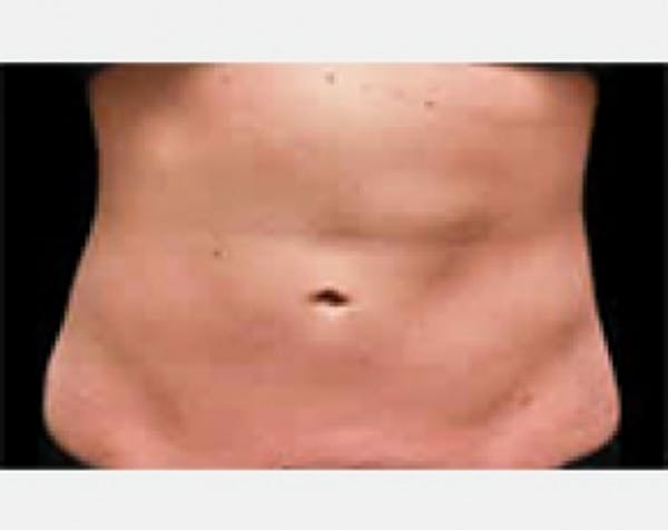 CoolSculpting Gallery - Patient 5883996 - Image 2