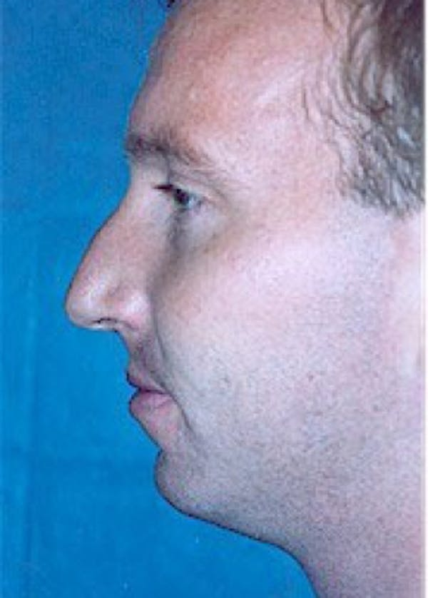 Rhinoplasty Gallery - Patient 5883998 - Image 1