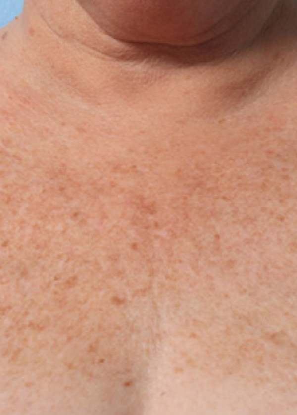 Ultherapy Gallery - Patient 5883997 - Image 2