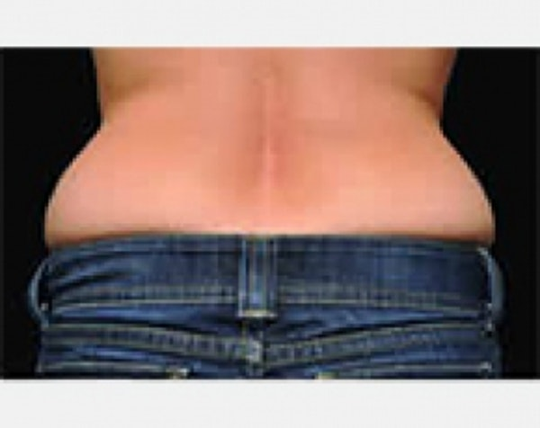 CoolSculpting Gallery - Patient 5883999 - Image 1