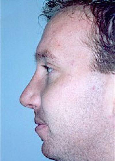 Rhinoplasty Gallery - Patient 5883998 - Image 2
