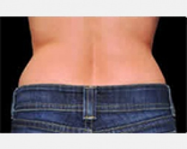 CoolSculpting Gallery - Patient 5883999 - Image 2