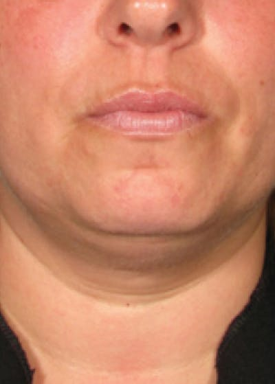 Ultherapy Gallery - Patient 5884004 - Image 1