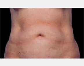 CoolSculpting Gallery - Patient 5884005 - Image 1