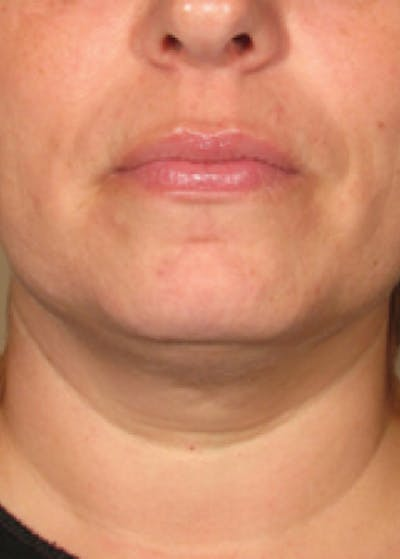 Ultherapy Gallery - Patient 5884004 - Image 5