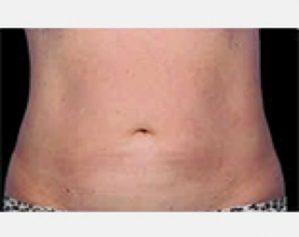 CoolSculpting Gallery - Patient 5884005 - Image 2
