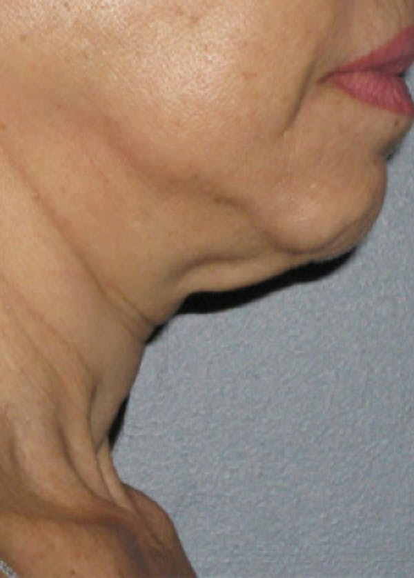 Ultherapy Gallery - Patient 5884010 - Image 1