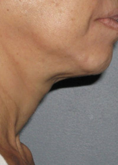 Ultherapy Gallery - Patient 5884010 - Image 2