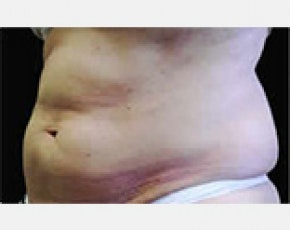 CoolSculpting Gallery - Patient 5884015 - Image 1